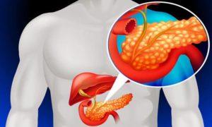 Фото поджелудочной железы у человека
